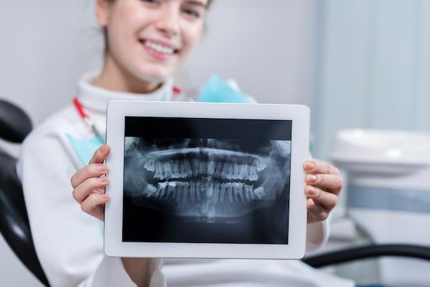 Giovane donna felice che mostra i suoi raggi x dei denti Foto Gratuite
