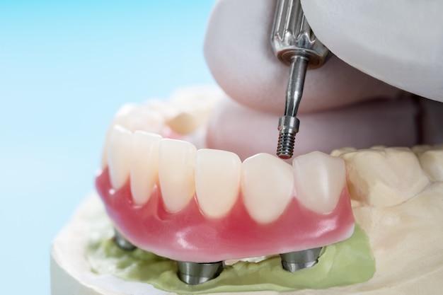 Gli impianti dentali del primo piano hanno supportato l'overdenture sull'azzurro. Foto Premium