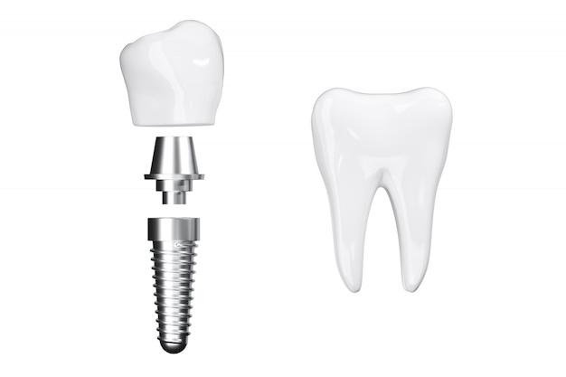 Isolare vicino impianti di processo con denti bianchi di bellezza. rendering 3d Foto Premium