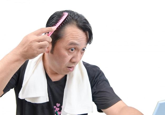 L'uomo asiatico si preoccupa per la sua perdita di capelli o alopecia isolata Foto Premium