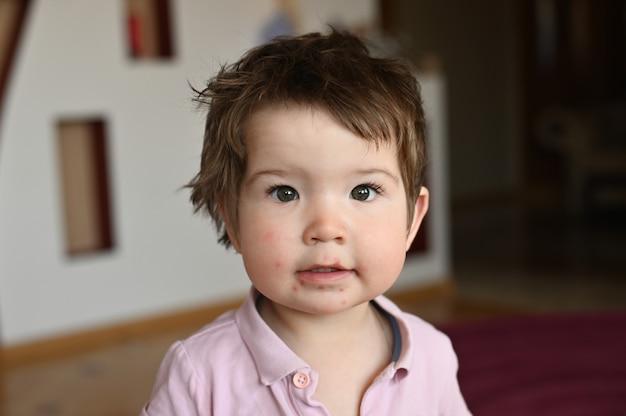 La bambina si è cosparsa di herpes Foto Premium