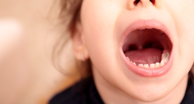 La ragazza ha la carie sui denti Foto Premium