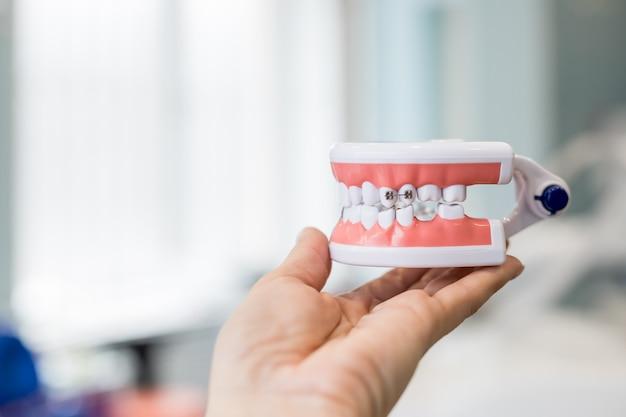 Modello della mascella dei denti in mano del medico. Foto Premium