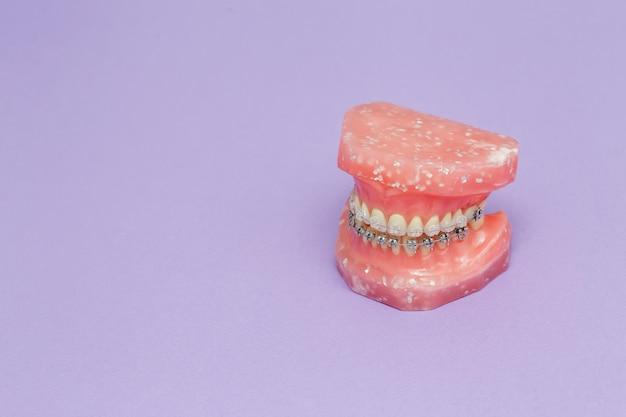 Modello di mascella o denti umani con apparecchi ortodontici metallici Foto Premium