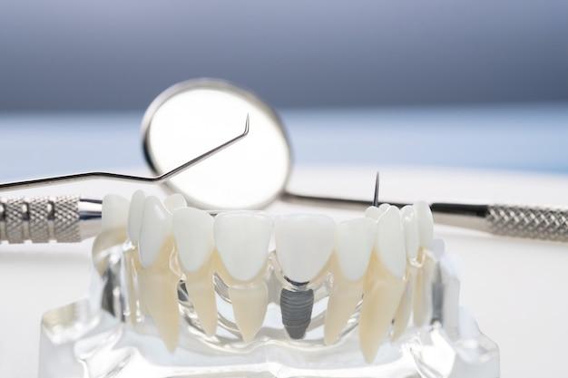 Modello e strumenti di impianto e ortodonzia per gli studenti all'apprendimento del modello di insegnamento che mostra i denti. Foto Premium