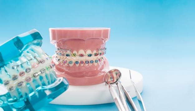 Modello ortodontico e strumento dentista - modello di denti dimostrativi di varietà di bracket ortodontici o tutori Foto Premium