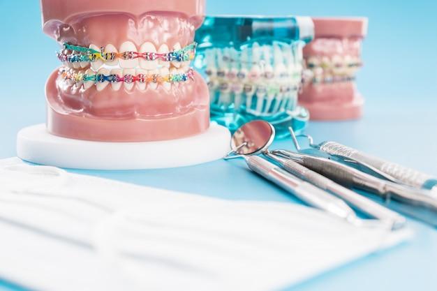 Modello ortodontico e strumento per dentista - modello di denti dimostrativi delle varianti della staffa ortodontica o del tutore Foto Premium