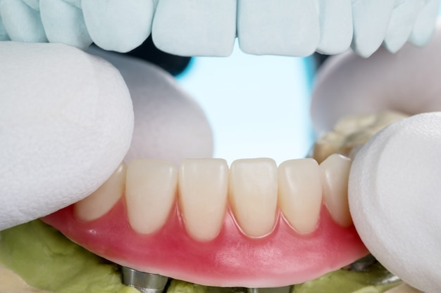 Overdenture supportato da impianti closeup / dentali Foto Premium