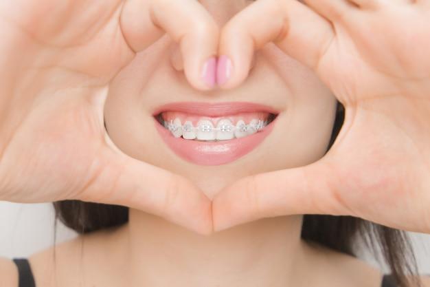 Parentesi graffe dentali nelle bocche della donna felice attraverso il cuore. staffe sui denti dopo lo sbiancamento. staffe autoleganti con fascette metalliche ed elastici grigi o elastici per un sorriso perfetto Foto Premium
