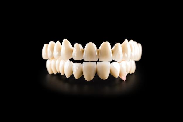 Ponte in ceramica dentale sul nero isolato Foto Premium