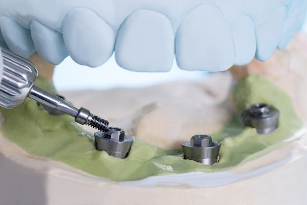 Primo piano / componenti del moncone convertibile / moncone provvisorio per impianto dentale / vite del moncone. Foto Premium