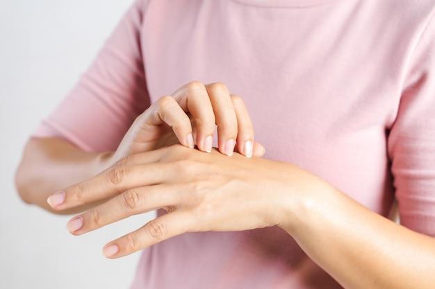 Primo piano della giovane donna che graffia il prurito sulle sue mani. concetto di assistenza sanitaria e medica. Foto Premium