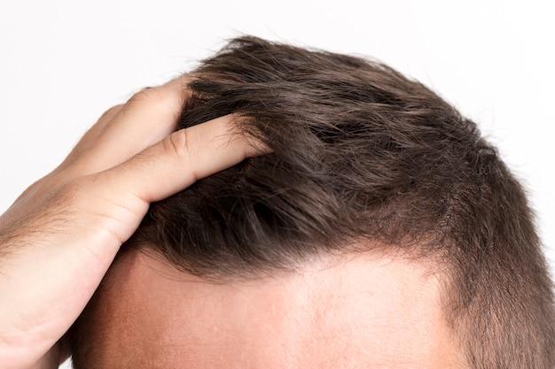 Primo piano della mano dell'uomo che tocca i suoi capelli Foto Gratuite