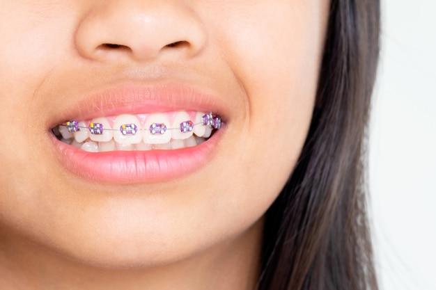 Ragazza con i denti di parentesi graffe che sorride e felice Foto Premium