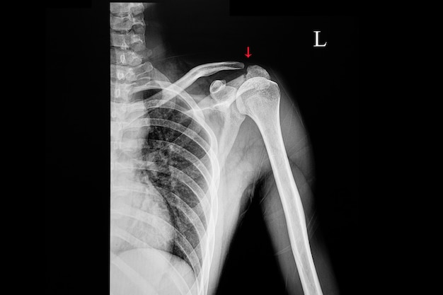 Raggi x di un paziente con frattura acromion Foto Premium