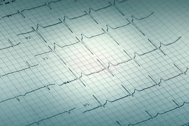Rapporto grafico ecg su carta, elettrocardiogramma su modulo cartaceo come sfondo Foto Premium