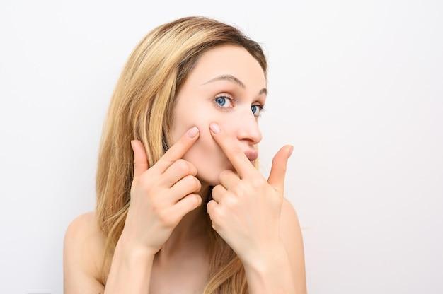 Ritratto di giovane donna bionda stampa brufoli Foto Premium