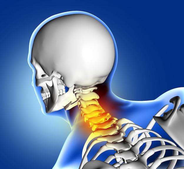 Scheletro con dolore al collo Foto Gratuite