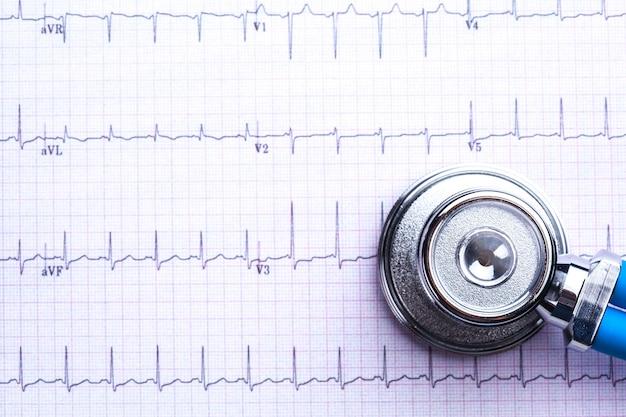 Stetoscopio sul foglio cardiogramma Foto Premium