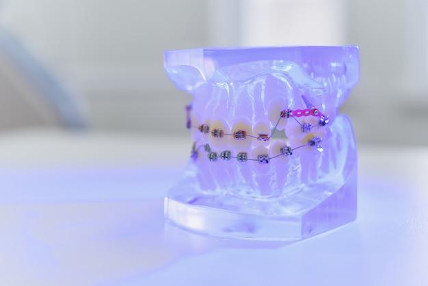 Sul tavolo giacciono mascelle artificiali trasparenti con bretelle Foto Premium