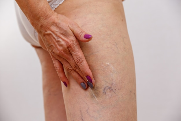 Una donna anziana spalma una crema o un unguento sulla sua gamba su uno sfondo chiaro isolato. Foto Premium