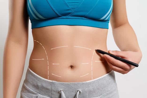 Una donna mostra una linea tratteggiata sulla sua zona di liposuzione del corpo Foto Premium
