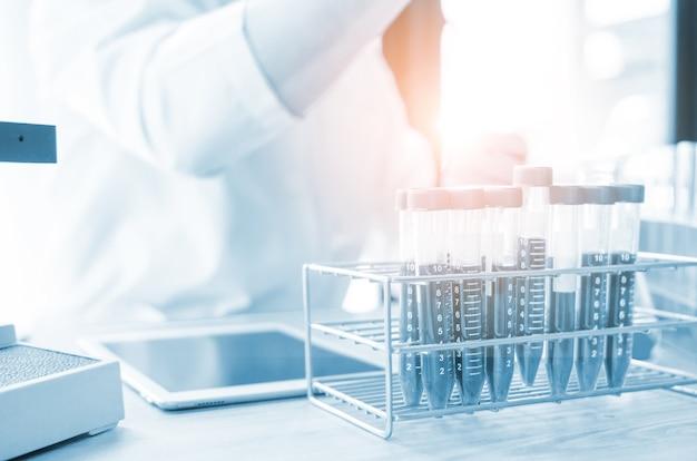 Vacutainer o provetta in laboratorio sul tavolo Foto Premium