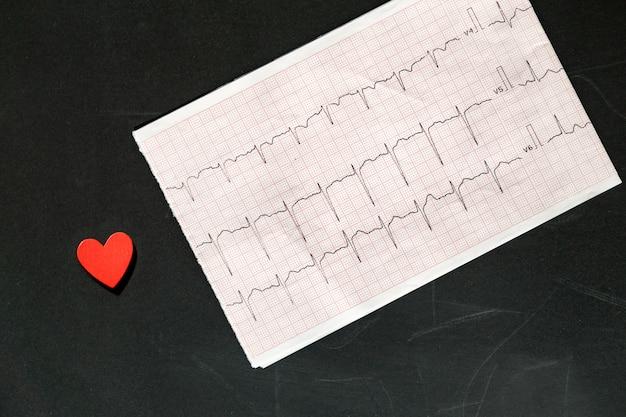 Vista dall'alto di un elettrocardiogramma in forma di carta con cuore in legno rosso. carta ecg o ecg su nero. concetto medico e sanitario. Foto Premium