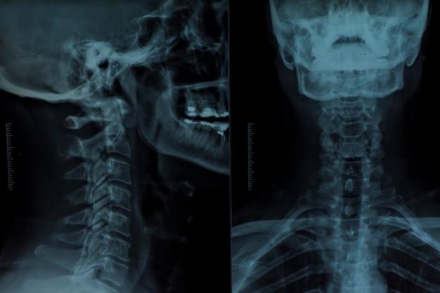 X raggio di una testa umana Foto Gratuite