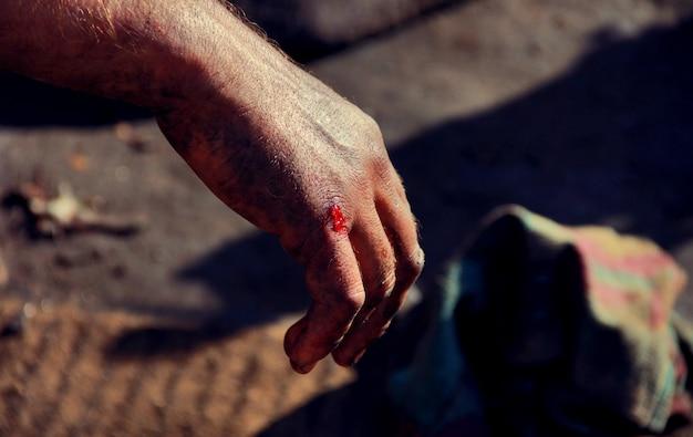 A mão do homem com tristeza sangrenta Foto Premium
