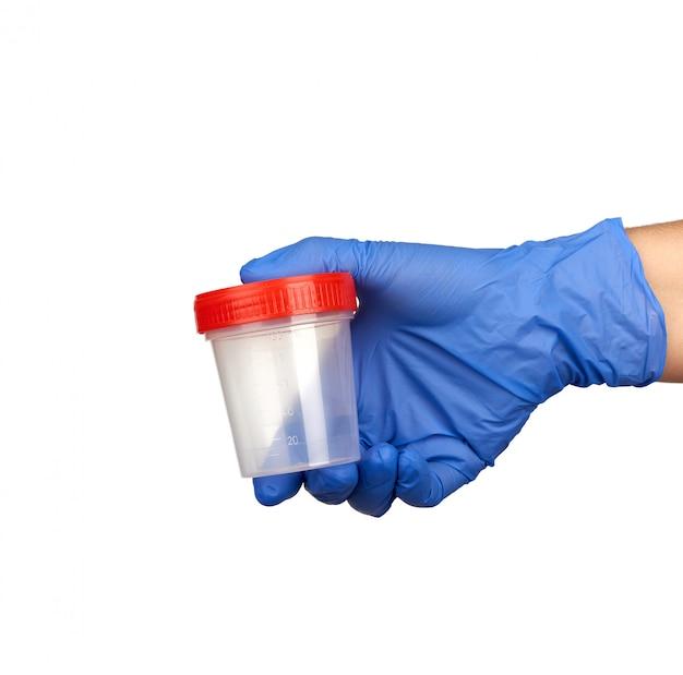 A mão segura um frasco de plástico transparente com uma tampa vermelha para exames de urina; parte do corpo está vestida com luvas estéreis médicas azuis Foto Premium