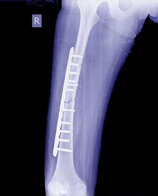 A perna quebrada radiografa a imagem, a imagem do raio x do pé da fratura com placa e parafuso do implante. Foto Premium