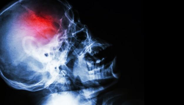 Acidente vascular encefálico . acidente vascular cerebral . crânio de raio-x do filme. Foto Premium
