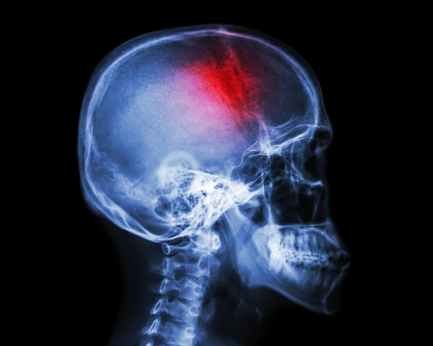 Acidente vascular encefálico. acidente vascular cerebral. filme de raio-x do crânio humano Foto Premium