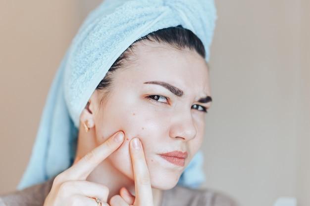 Adolescente, apertando as espinhas, removendo espinha do rosto. Foto Premium