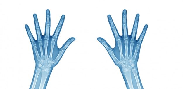 Ambas as imagens de raio-x de mão. Foto Premium