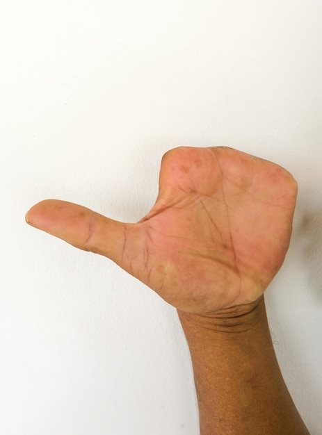 Amputar o dedo das pessoas do acidente. mão anormal. Foto Premium