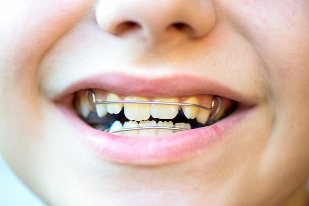 Aparelhos dentais removíveis azuis ou retentores para os dentes na boca dos meninos Foto Premium