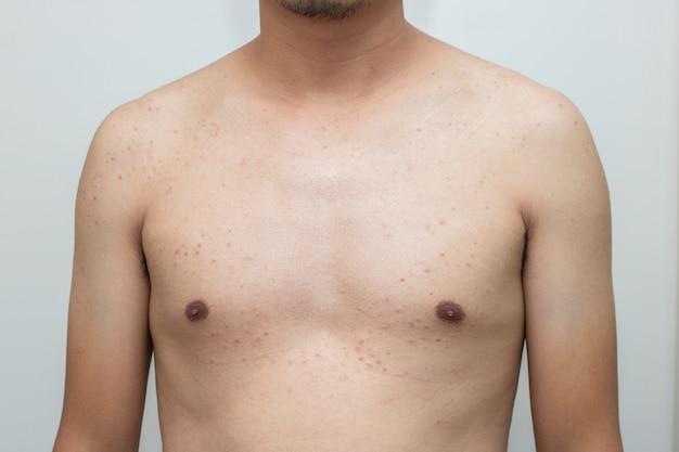 Bactérias da acne no skincare do corpo masculino Foto Premium