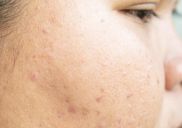 Cicatriz de acne no rosto e problemas de pele e poros em adolescentes Foto Premium