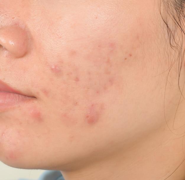 Cicatriz de acne no rosto Foto Premium