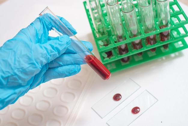 Cientista, trabalhando, com, amostra sangue, em, laboratório Foto Premium
