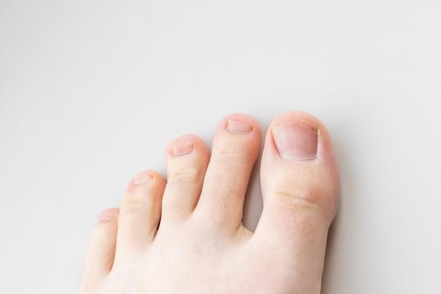 Close de pernas femininas, dedos e unhas sem pedicure Foto Premium