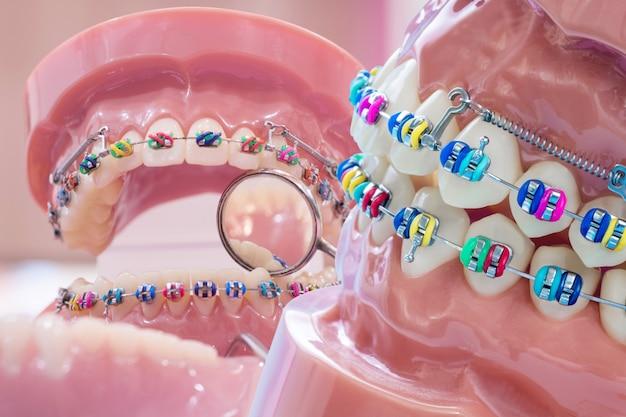 Close-up de ferramentas de dentista e modelo ortodôntico Foto Premium