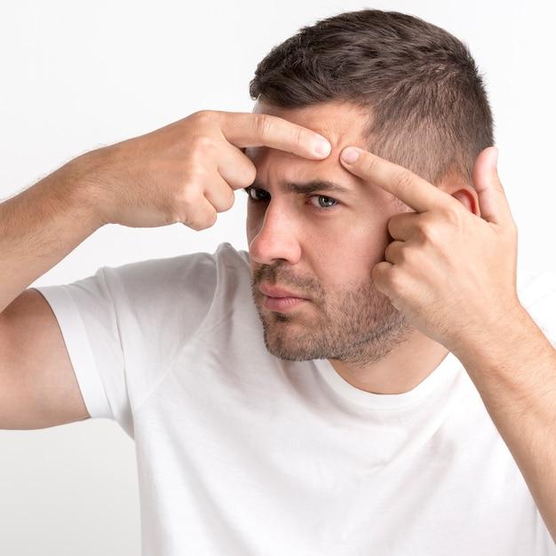 Close-up, de, homem jovem, em, branca, t-shirt, espremer, espinhas, ligado, seu, testa Foto gratuita