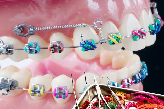 Close-up ferramentas de dentista e modelo ortodôntico Foto Premium