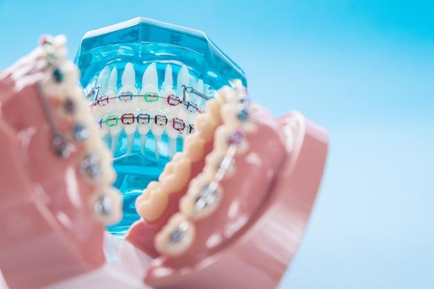 Close-up modelo ortodôntico e dentista ferramenta sobre o fundo azul Foto Premium