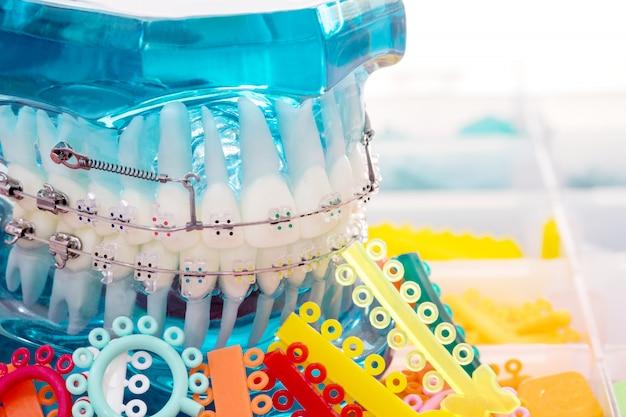 Close up modelo ortodôntico - modelo de dentes de demonstração de variedades de suporte ortodôntico ou cinta Foto Premium