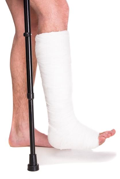 Close-up paciente com a perna quebrada no elenco e curativo. Foto Premium
