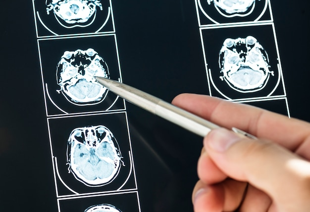 Closeup do resultado do exame de ressonância magnética do cérebro Foto gratuita